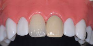 オールセラミッククラウンと硬質レジン前装冠の比較写真